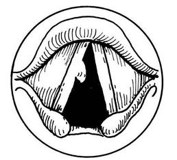 声带息肉的结构图