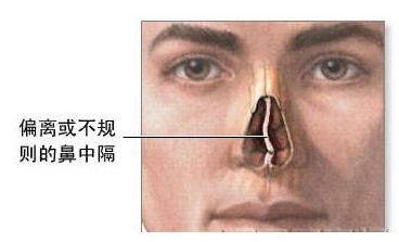 鼻部解析图