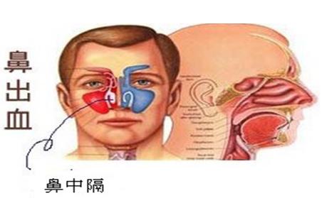 鼻中隔偏曲的症状鼻出血