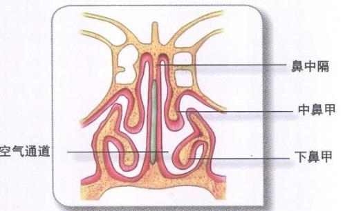 鼻中隔偏曲解析图